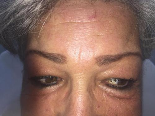 Augenbrauen vor Permanent Makeup
