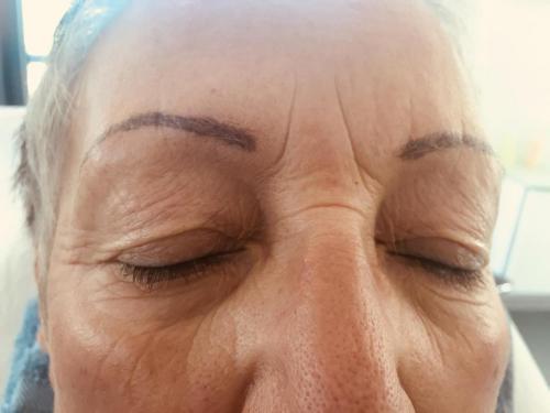 Augenlider vorher