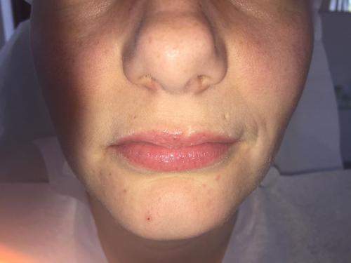 Lippen ohne Permanent Makeup