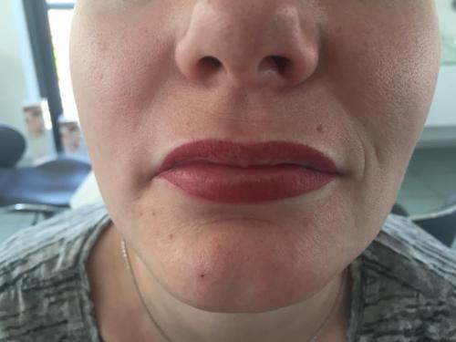 Lippen nach Permanent Makeup
